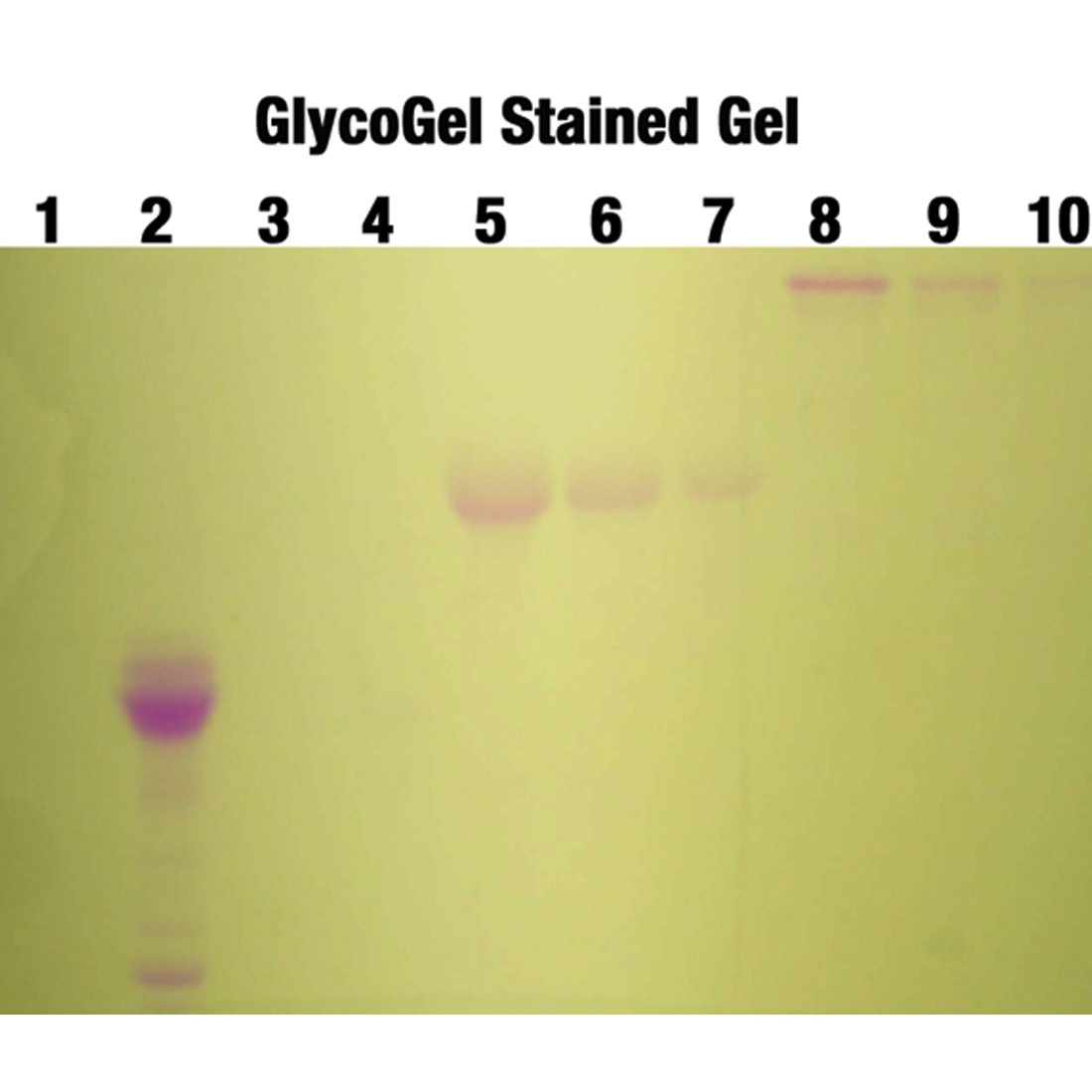 GlycoGel Stain Kit