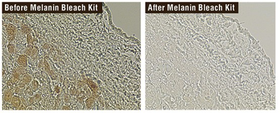 Delicate Melanin Bleach Kit for Special Stains and IHC
