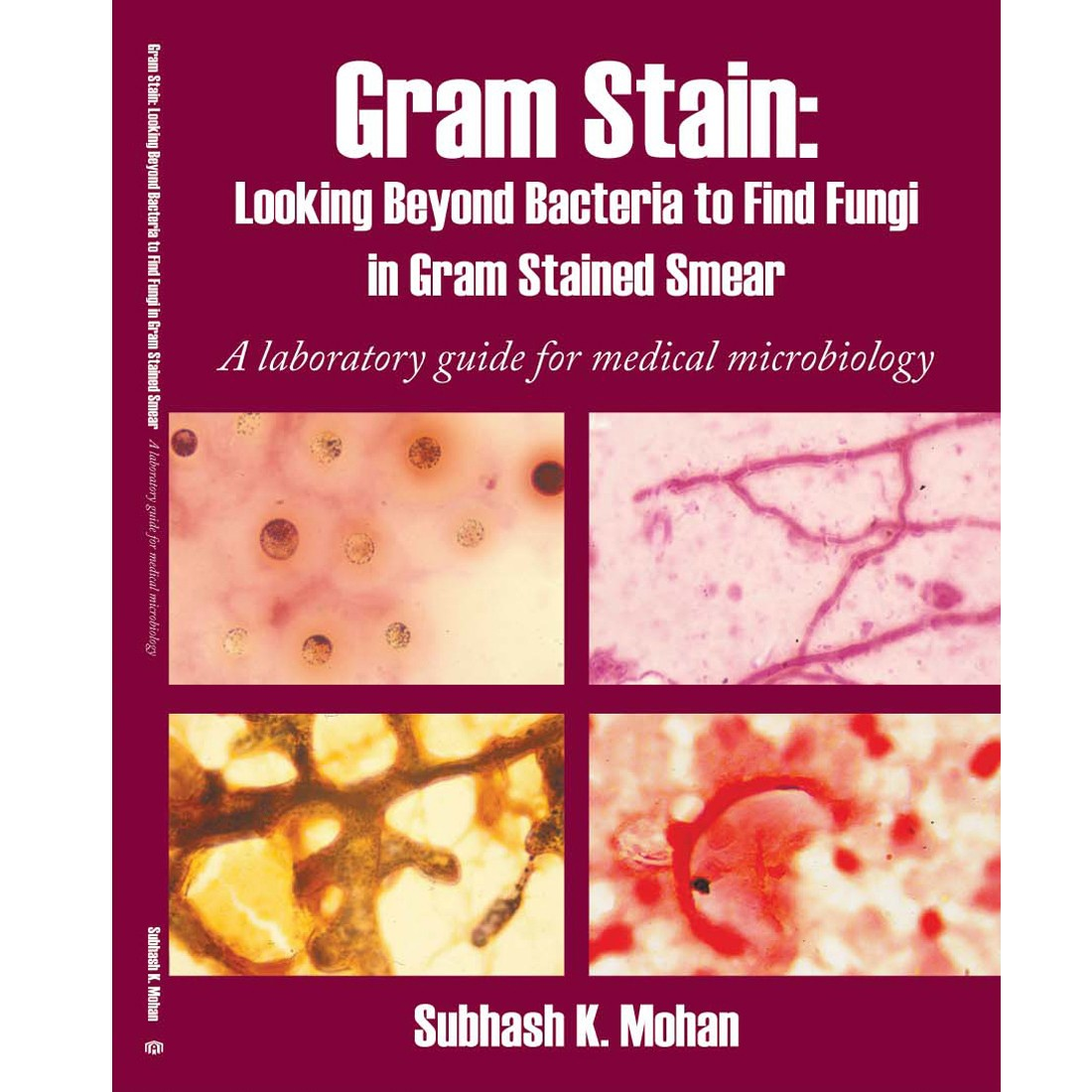 Gram Stain: Looking Beyond Bacteria to Find Fungi in Gram Stained Smear: A laboratory guide for medical microbiology