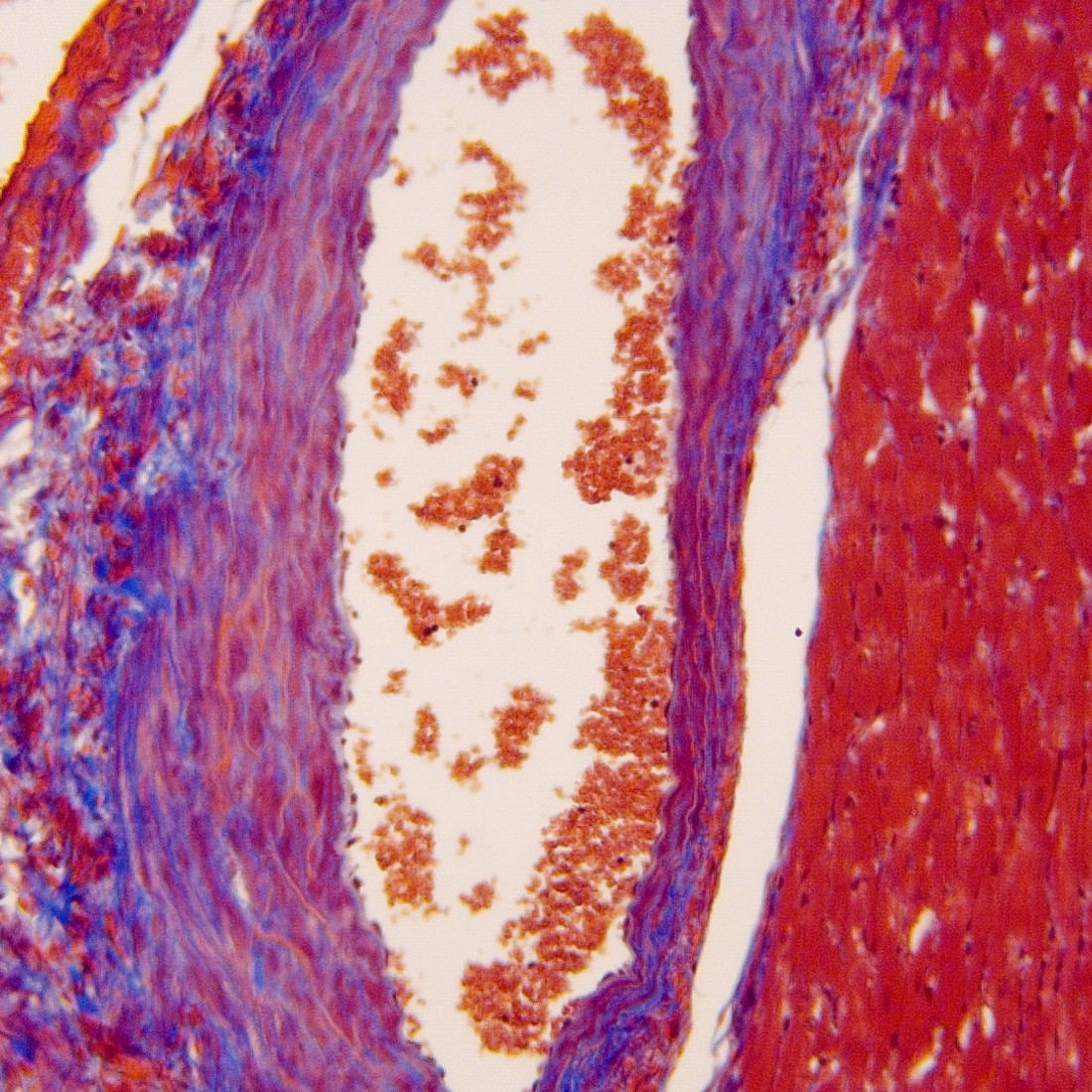 Masson's Trichrome Stain Kit