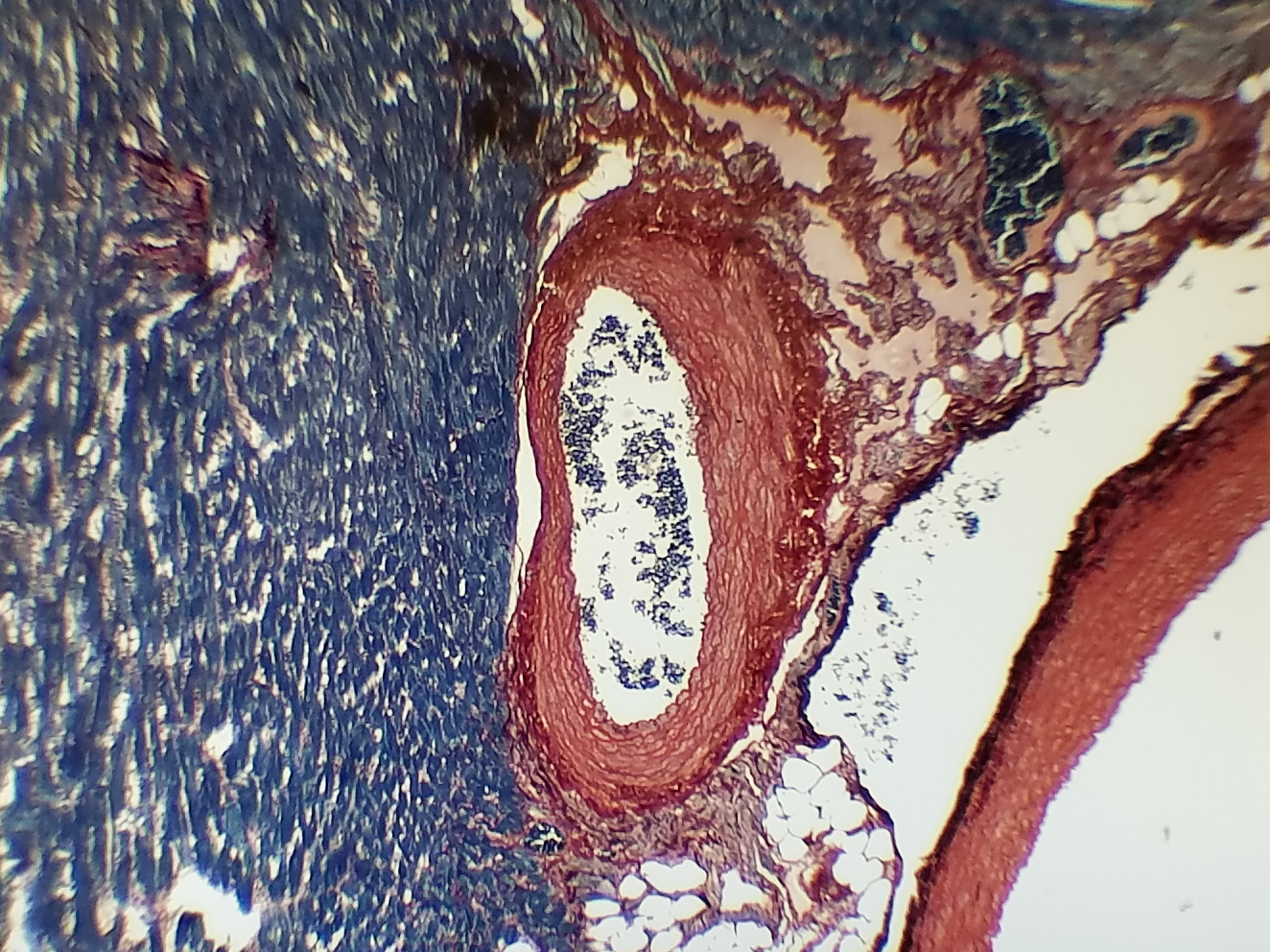 Heart tissue stained with Rapid PTAH Stain Kit