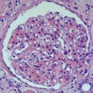 Gill's Hematoxylin #3, triple strength for Histology