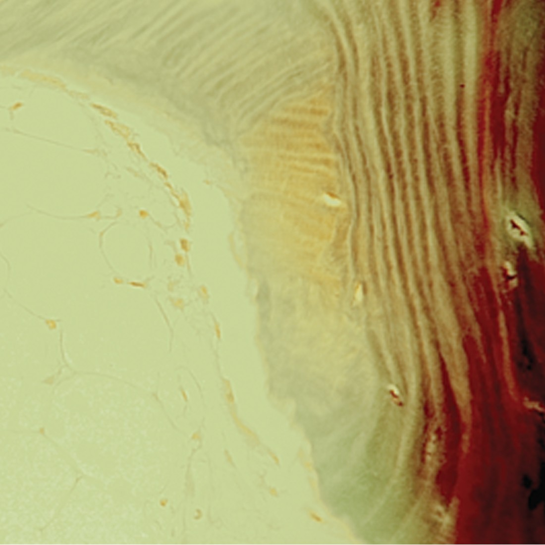 Villanueva Osteochrome Bone Stain