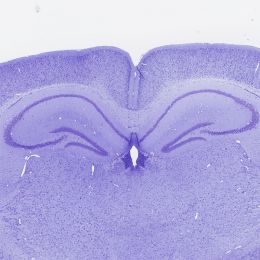 Cresyl violet acetate, certified